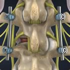 spine procedures surgical
